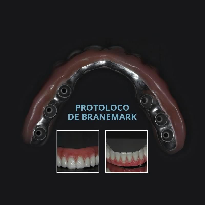 Protocolo de Branemark - passo a passo