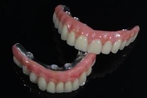 Reabilitação oral sobre implantes