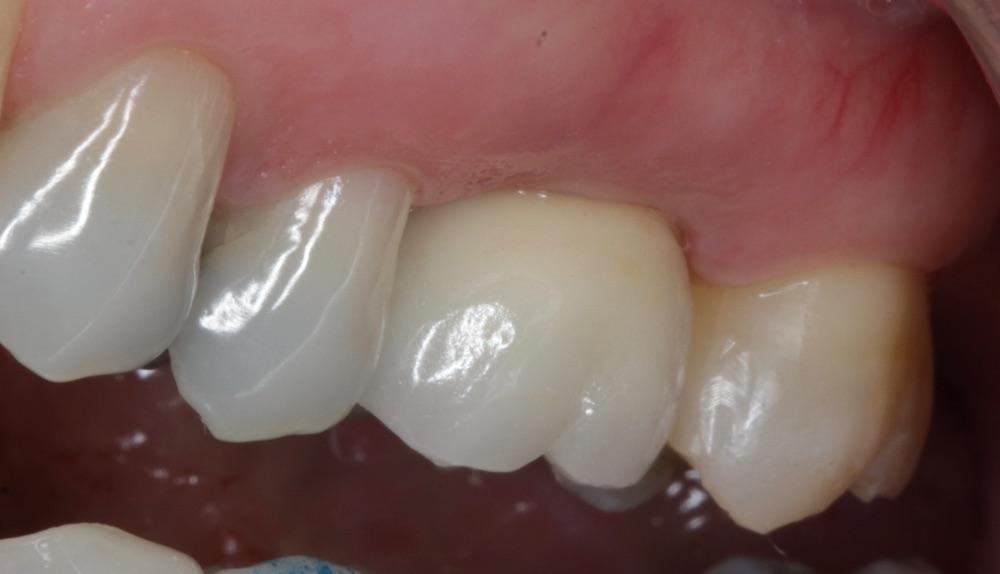 Implante e coroa sobre implante