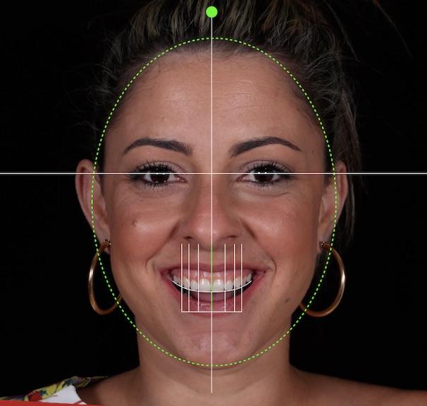 Desenho Digital do Sorriso