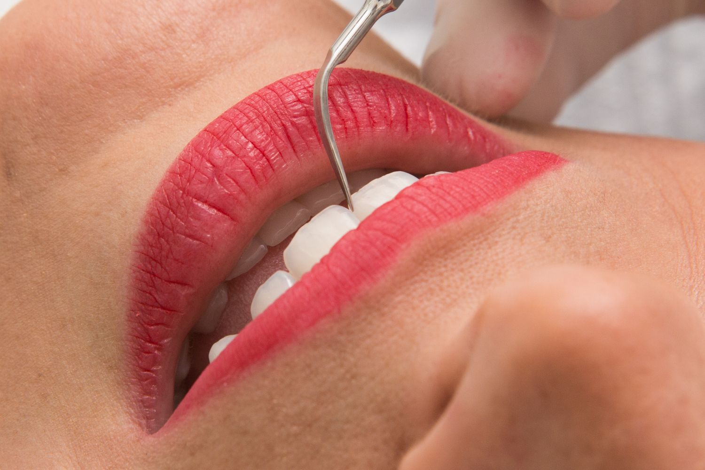Tratamento Periodontal (remoção de tártaro)